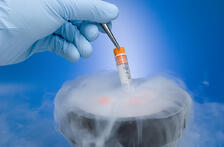 Cryopreservation of cells has it's advantages